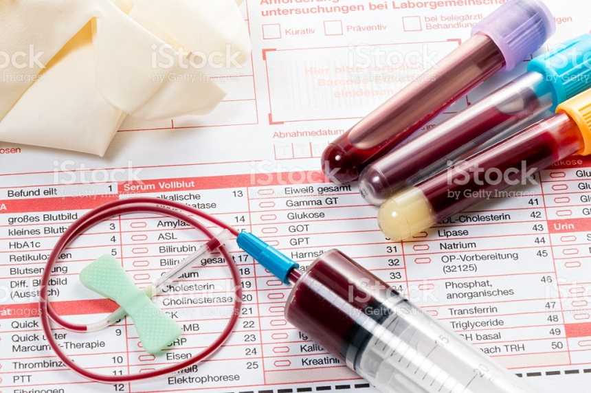 Blood samples are on a laboratory form for Finding out the blood values